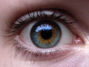 Central_Heterochromia_Example_Blue_&_Brown